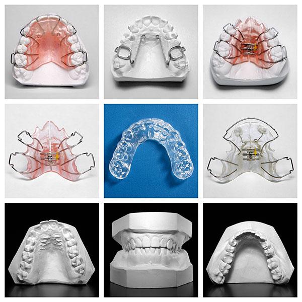 ortodonzia-intercettiva